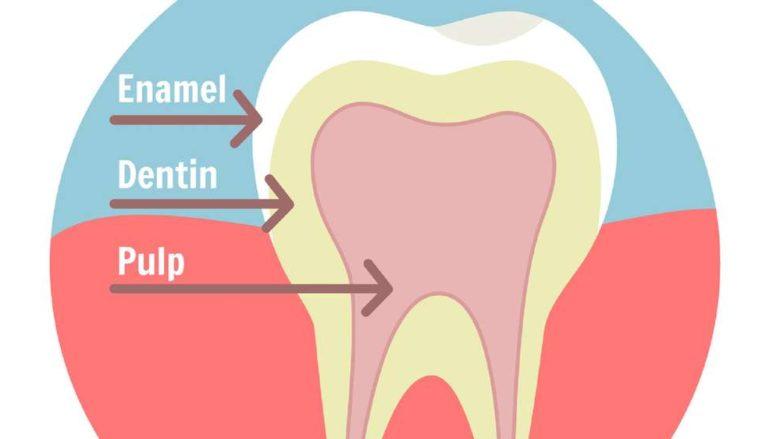 Prévention de l'érosion dentaire